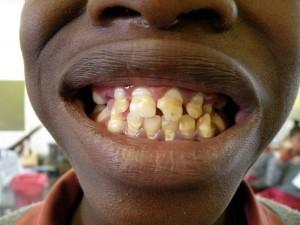 Ein typischer Zahnpatient